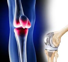Knee Replacement Medical Device